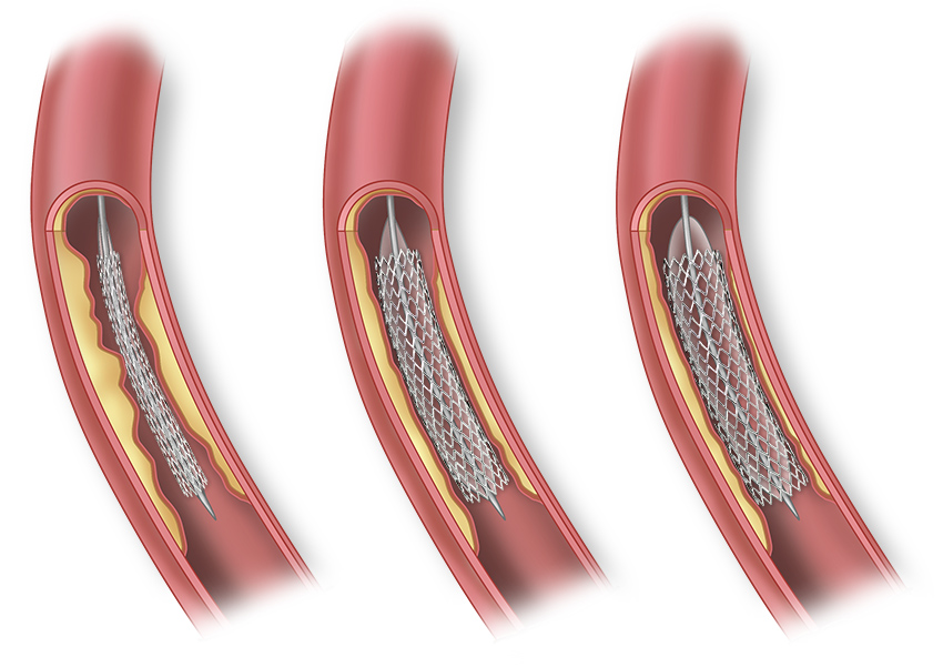 The Stent